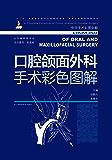 """口腔颌面外科手术彩色图解 (""""十二五""""国家重点图书出版规划项目 国家出版基金项目)"""
